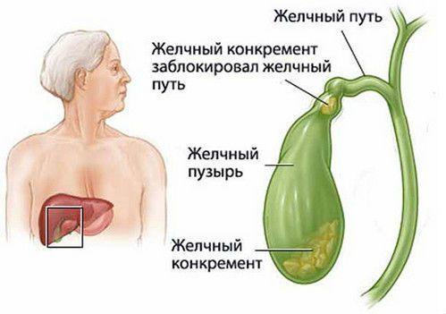 Боли при холецистите: какие могут быть болевые ощущения при приступе холецистита, как снять спазмы и боли