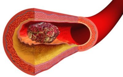 Д-димер: норма в крови, причины повышения, при беременности
