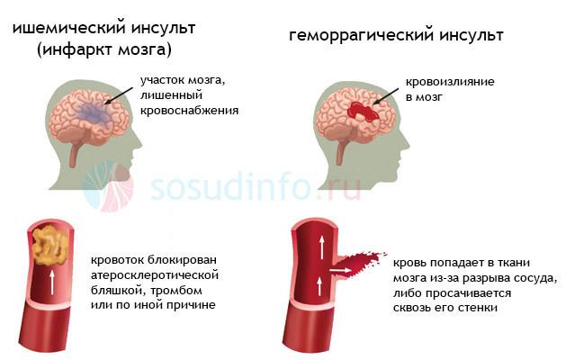 Инсульт мозжечка головного мозга: последствия, симптомы и прогноз восстановления