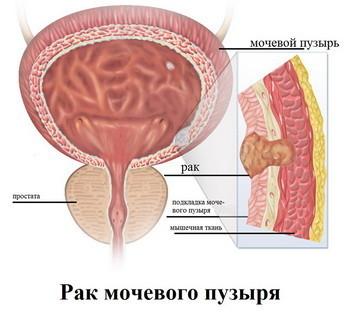 Рак мочевого пузыря у женщин: симптомы, первые признаки, сколько живут с таким диагнозом, диагностика шейки, отзывы на форуме больных, лечение боли