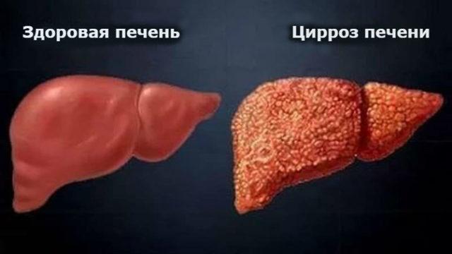 Чем опасен повышенный билирубин? Норма в крови, причины и методы лечения
