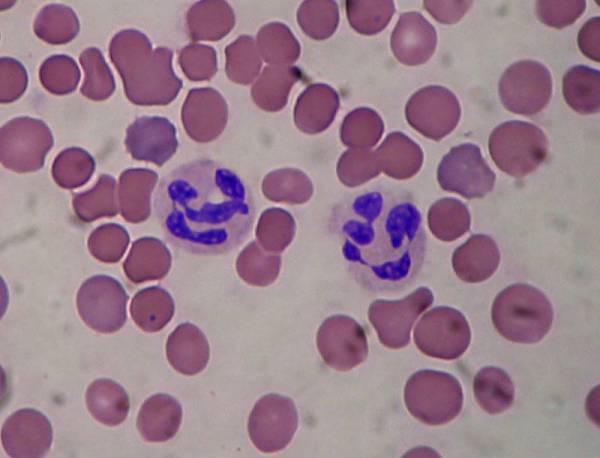 Клетки крови человека под микроскопом. Строение клеток крови: эритроциты, лейкоциты и тромбоциты