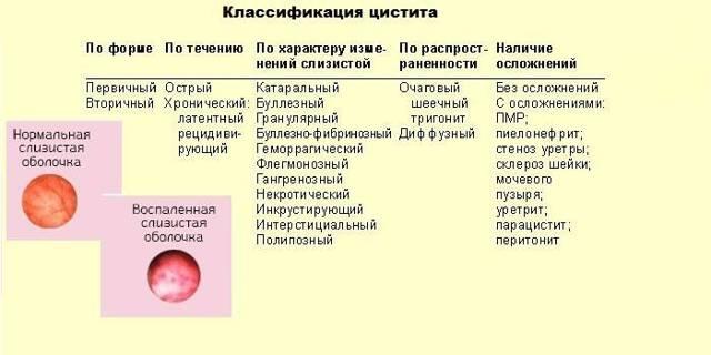 Хронический цистит у женщин, симптомы и лечение, отзывы пациентов, как и чем лечить, препараты.