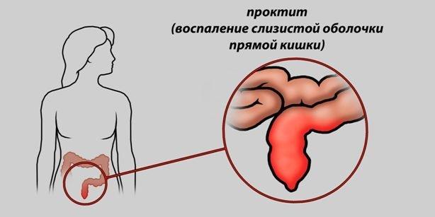 Кал с кровью у женщин: причины крови из заднего прохода у женщин
